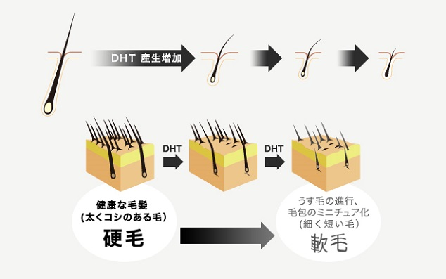 DHT画像