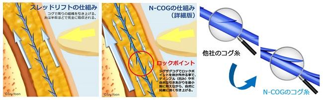 ncog1-4
